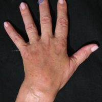 Lipo-Filling hands – Case 4b – After