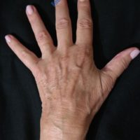Lipo-Filling hands – Case 4b – Before