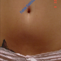 Lipo-grafting case 7- Navel piercing damage treated with lipofiling – After