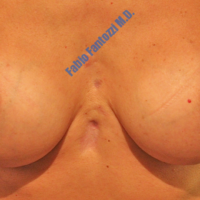 Lipo-grafting case 8- Treatment of dermal lesions using lipo – Before
