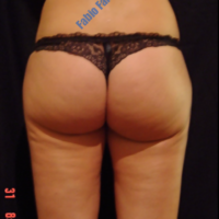 Liposuction & Lipo-filling case 1- Perigluteal – After
