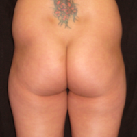 Liposuction & Lipo-filling case 2- Perigluteal – Before