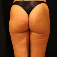 Liposuction & Lipo-filling case 4- Perigluteal – After