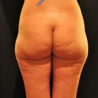 Liposuction & Lipo-filling case 4- Perigluteal – Before