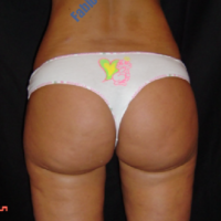 Liposuction & Lipo-filling case 5- Perigluteal – After
