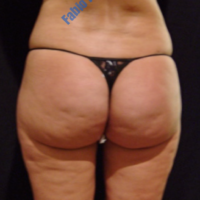 Liposuction & Lipo-filling case 5- Perigluteal – Before
