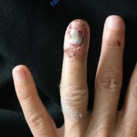 Reconstruction of finger – Case 11 – Before