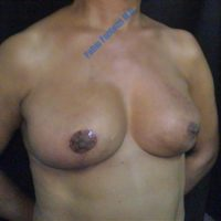 Repair of breasts after breast cancer (case 3) – After