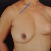 Repair of breasts after breast cancer (case 3) – Before
