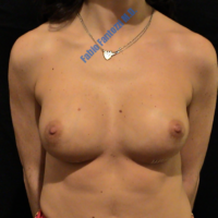 Repair of damaged breast implant (case 1) – After