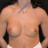Repair of damaged breast implant (case 1) – Before